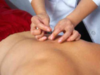 Acupunctura: ramura a medicinii traditionale chineze