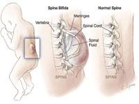 Trage partea inferioara a spatelui si durerea plictisitoare in abdomenul inferior