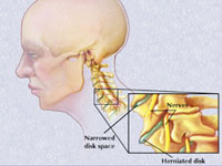 forum pentru tratamentul artrozei cervicale luxația obișnuită a tratamentului articulației genunchiului