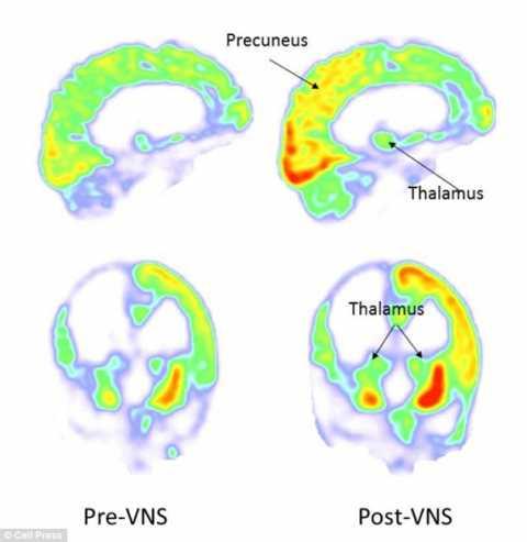stimulator-nervos-creier.jpg