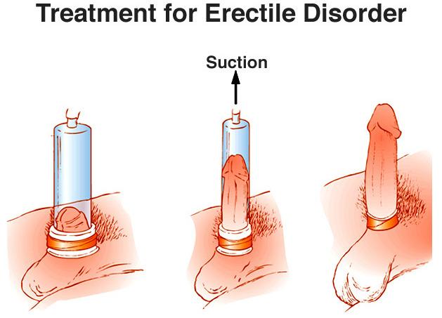 erecție slabă cu)